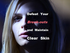 Defeat Your Break-outs and Maintain Clear Skin