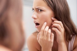12 Causes of pimples:Find Out Why You Break Out