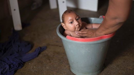 Baby Jose Wesley being bathed in a bucket, Poco Fundo, Brazil. His microcephalic condition was diagnosed a couple of days after his birth