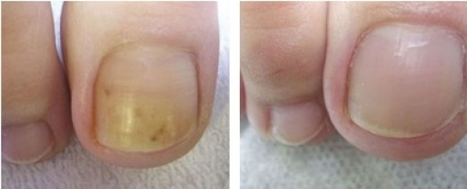 One of the less disturbing photos of actual nail fungus out there.
