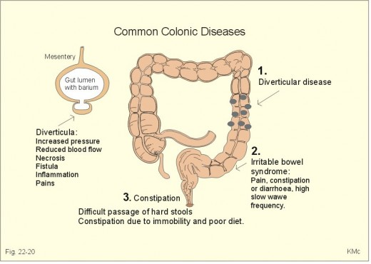Disorders of colon. Click on pictures to get a much better view of them.