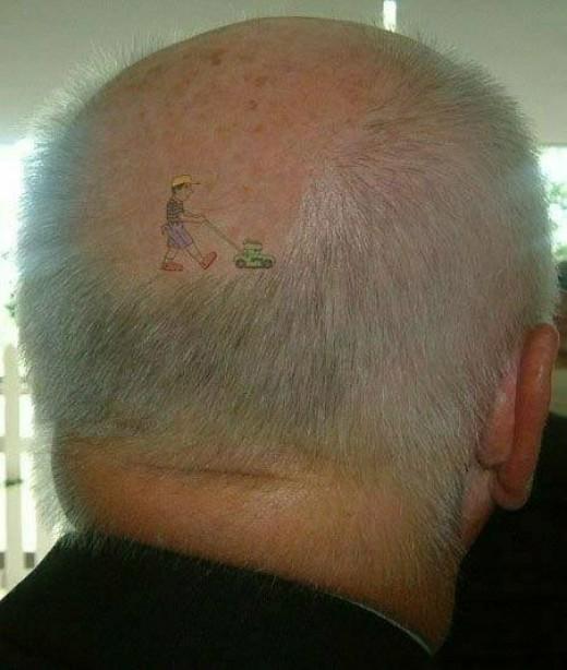 Baldness In Men.