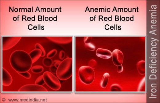 Iron Deficiency Anemia Hubpages