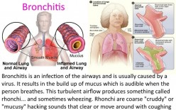 Bronchitis vs. Pneumonia | Home Remedies | Things To know
