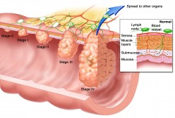 What Is Esophageal Cancer