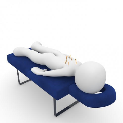 Example of acupuncture.