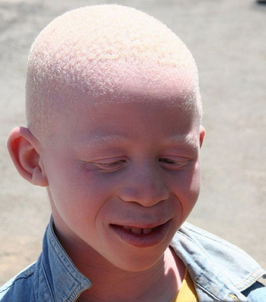 Person living with Albinism (An Albino)