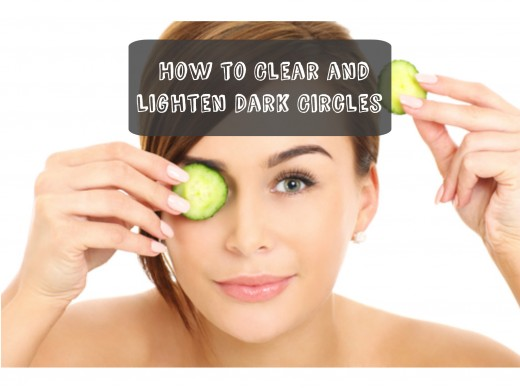 How to remove dark circles under your eyes with natural remedies.