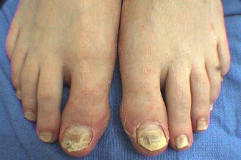 Advanced stage of toenail fungus