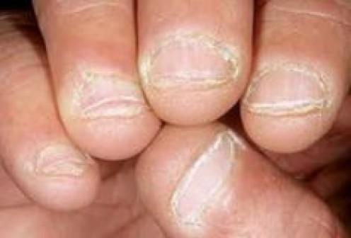 Fungus on fingernails