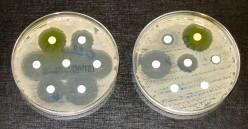 Urgent Antibiotic-Resistant Threats:  Carbapenem resistant Enterobacteriaceae (CRE)