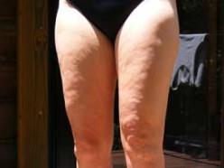 Cellulitehelp