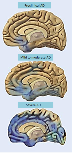 File: Alzheimer's disease progressin- brain degeneration. PNG National Institute of Aging 8 March 2013 CC-PD-Mark / PD US Government