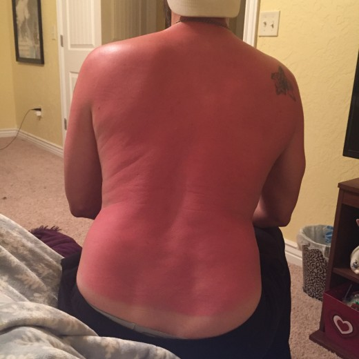 My illustrious sunburn - in April