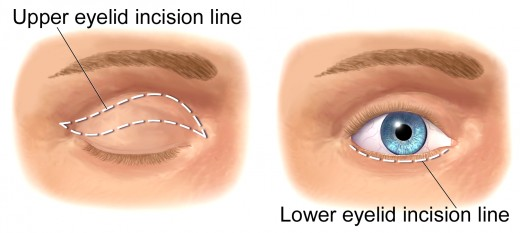 A blepharoplasty erases under eye circles and reshapes upper and lower eyelids by removing excess fat through incisions along the lid creases.