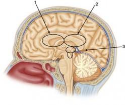 Parasagittal Approach