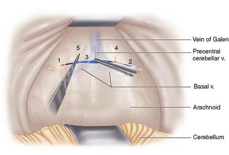 Infratentorial Approach 10-5