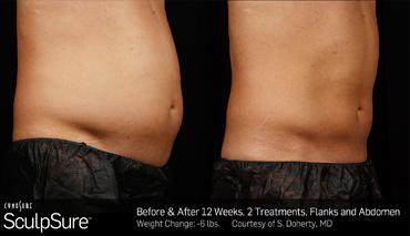 Non-invasive fat reduction method