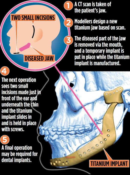 3D Printing of the Jaw