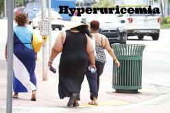 What Causes Hyperuricemia?