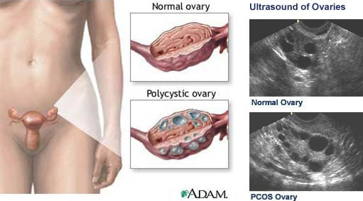 Polycystic ovaries in women