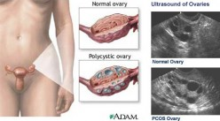 PCOS: Facts, tips and treatment of polycystic ovarian syndrome