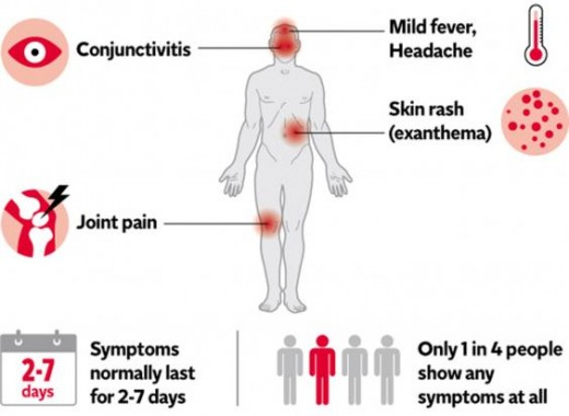 A simple chart with common zika symptoms