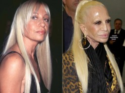 Celebrity Plastic Surgery; The Best and the Worst