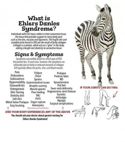 Ehlers-Danlos Syndrome Treatments