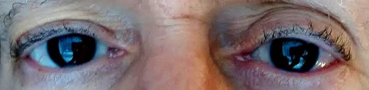 The reddish right eye had a retina tear that led to a retina detachment. Two months later, vision has not fully returned and a cataract is forming quickly in the repaired eye.