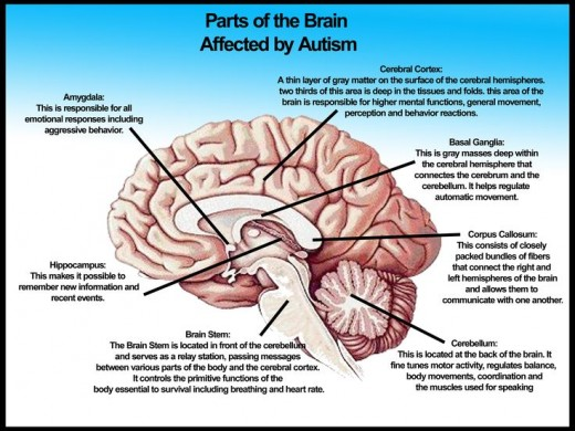 This diagram represents the autistic brain in detail.