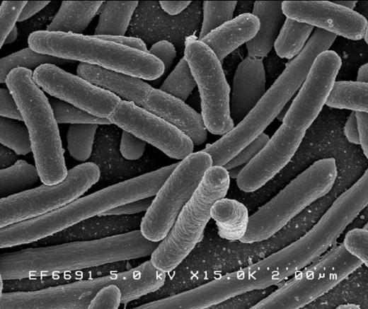 Escherichia coli: a long-term resident in our gut