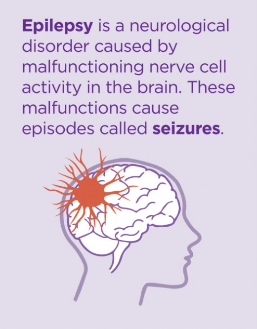 Epilepsy is neurological disease that is more common then some think.
