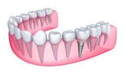 11 Benefits of Dental Implants