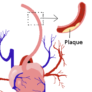 Plaque build up in an artery.