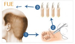 Hair Transplant and Hair Restoration in Delhi