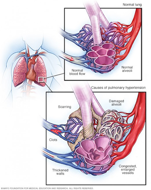 A comparison of normal lungs vs. PAH lungs.