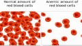 How to Prevent Symptoms of Anemia