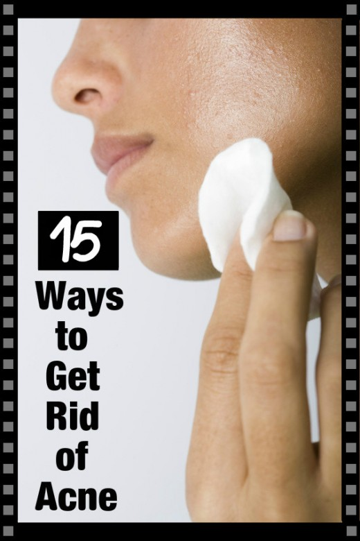 There are many ways to deal with acne including natural methods and professional treatments.