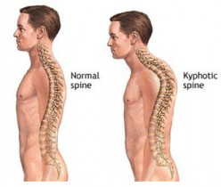 Personal Recollection of a Journey: My Journey Through Kyphosis