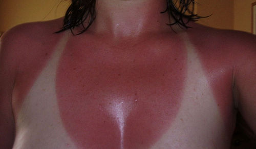 Prevent a major sunburn and use some kind of sun protection.