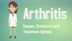Arthritis: Causes, Symptoms and Treatments Options!