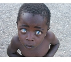 The Origin of Black People With Blue Eyes
