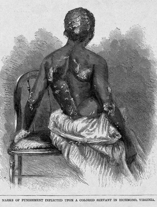 Image of a female slave who was repeatedly burned  by her slavemasters evil wife. The miscreant racist also poked out the eye of this woman's mother. It is well known that many slaveowners and slave traders were sadists.