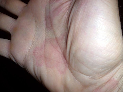Annular urticaria in a 60 year old man, trigger unknown.