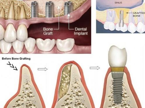 Bone Grafting in Dentisty