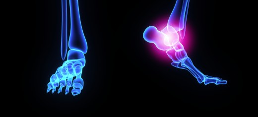 Treatment & Advice for Foot Problems