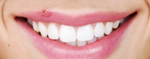 Cold Sore on the lips typically reoccurs in the same location. Use this fact as an early hint of an outbreak.