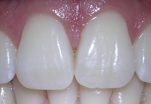 DIY All-Natural Whitening Toothpaste