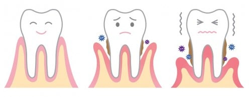 Here's a cute visual of this poor tooth losing it's favorite blanket. Stop tooth abuse today by treating your gums nicely!